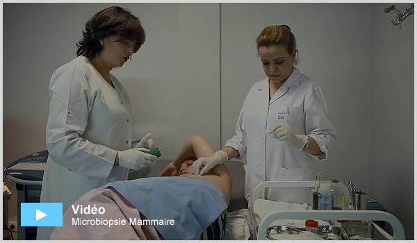 Microbiopsie